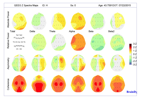Qeeg In Mapping on