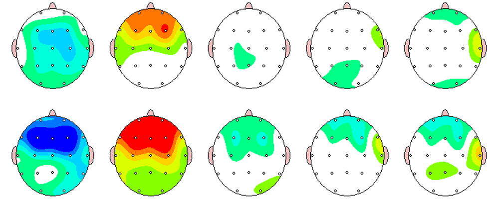Qeeg In Mapping Cost on
